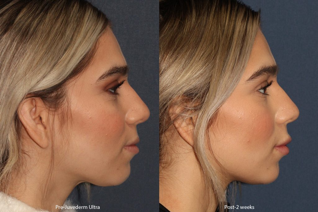 Actual un-retouched patient before and after Juvederm injections to the lips by Dr. Boen. Disclaimer: Results may vary from patient to patient. Results are not guaranteed.