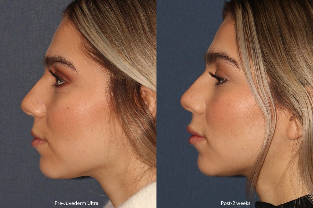Actual un-retouched patient before and after Juvederm Ultra injections to the lips by Dr. Boen. Disclaimer: Results may vary from patient to patient. Results are not guaranteed.