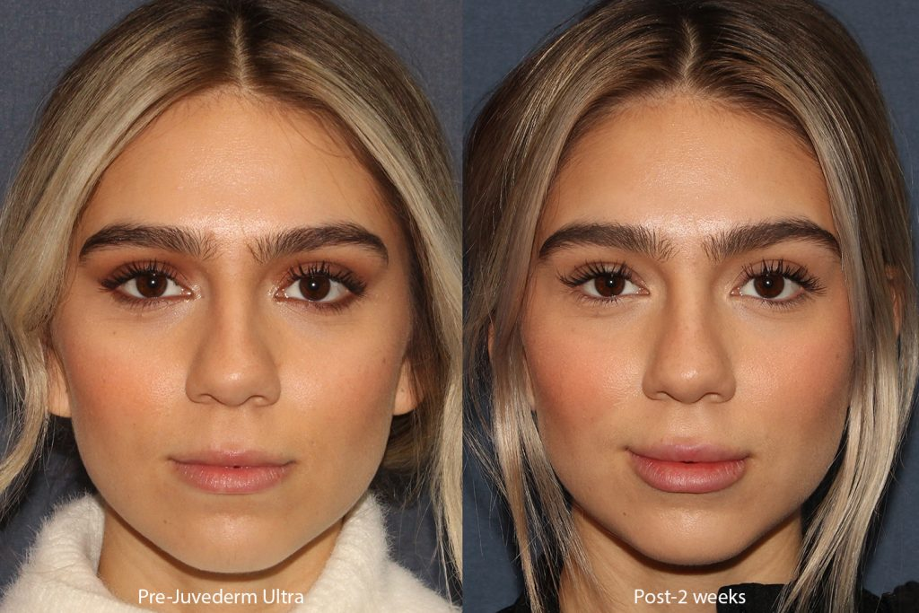 Actual un-retouched patient before and after Juvederm lip filler treatment with Dr. Boen. Disclaimer: Results may vary from patient to patient. Results are not guaranteed.