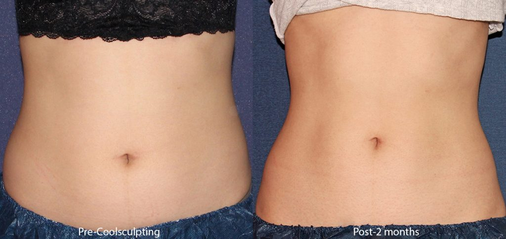 Actual un-retouched patient before and after Coolsculpting treatment to reduce abdomen with Leysin Fletcher, PA-C. Disclaimer: Results may vary from patient to patient. Results are not guaranteed.