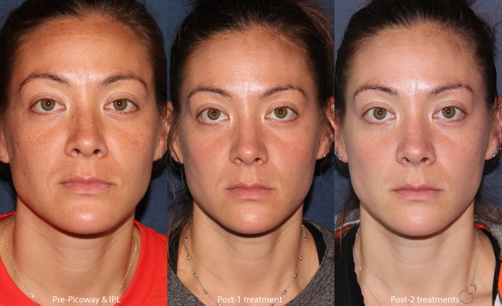 Actual un-retouched patient before and after of Picoway and IPL (Intense Pulsed Light) laser treatments  for sun damage by Dr. Wu. Disclaimer: Results may vary from patient to patient. Results are not guaranteed.