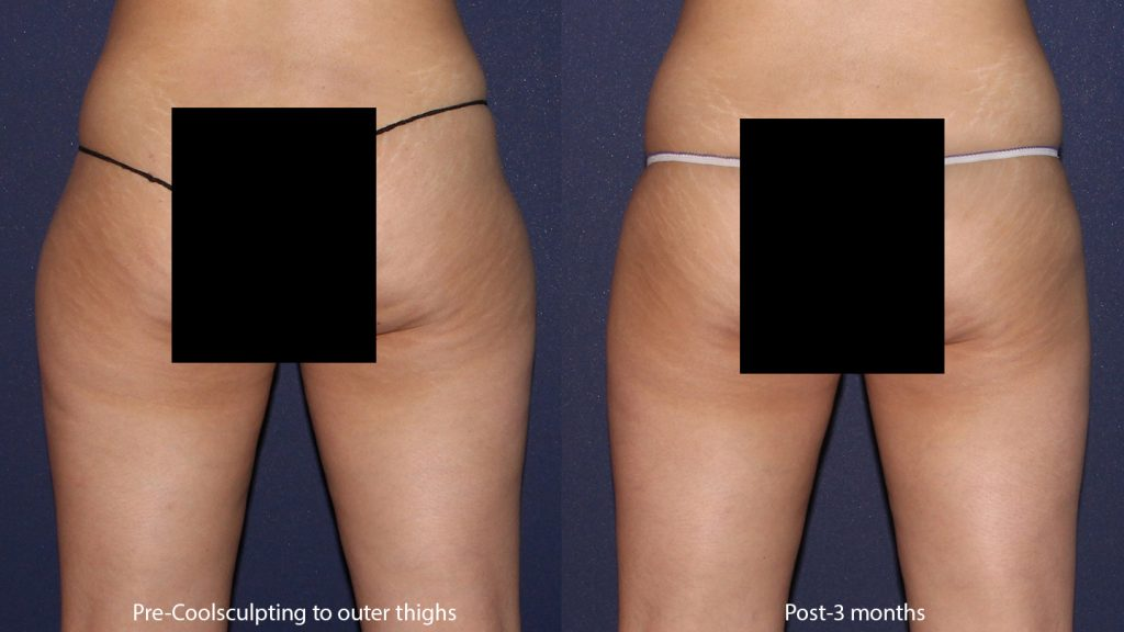 Actual un-retouched patient before and after of CoolSculpting treatment to sculpt buttocks, flanks and thighs by Leysin Fletcher, PA-C: Results may vary from patient to patient. Results are not guaranteed.