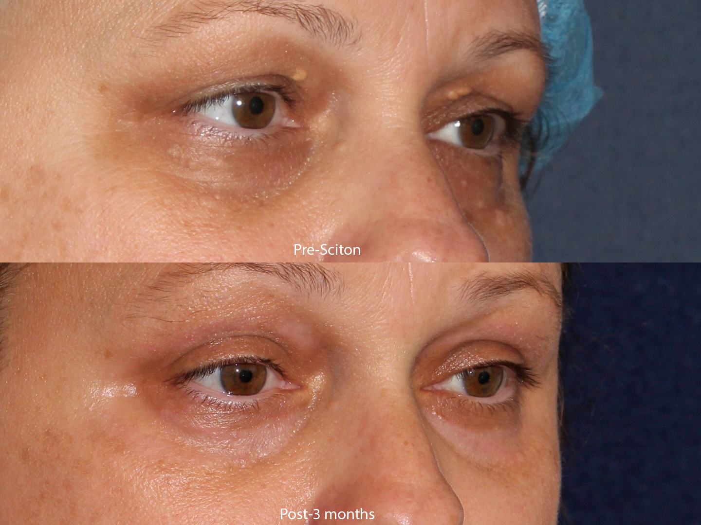 Actual un-retouched patient before and after of Sciton laser treatment for xanthomas and under-eye pigmentation by Dr. Goldman. Disclaimer: Results may vary from patient to patient. Results are not guaranteed.