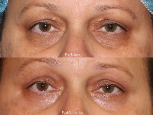 Before and after front image of Sciton laser treatment on a female's area under the eyes performed by Dr. Goldman at our San Diego medical spa