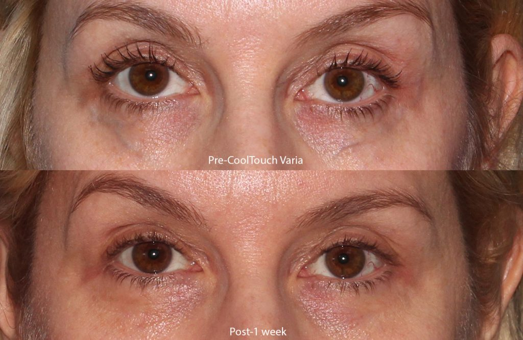 Actual un-retouched patient before and after of CoolTouch Varia for under-eye veins by Dr. Groff. Disclaimer: Results may vary from patient to patient. Results are not guaranteed.