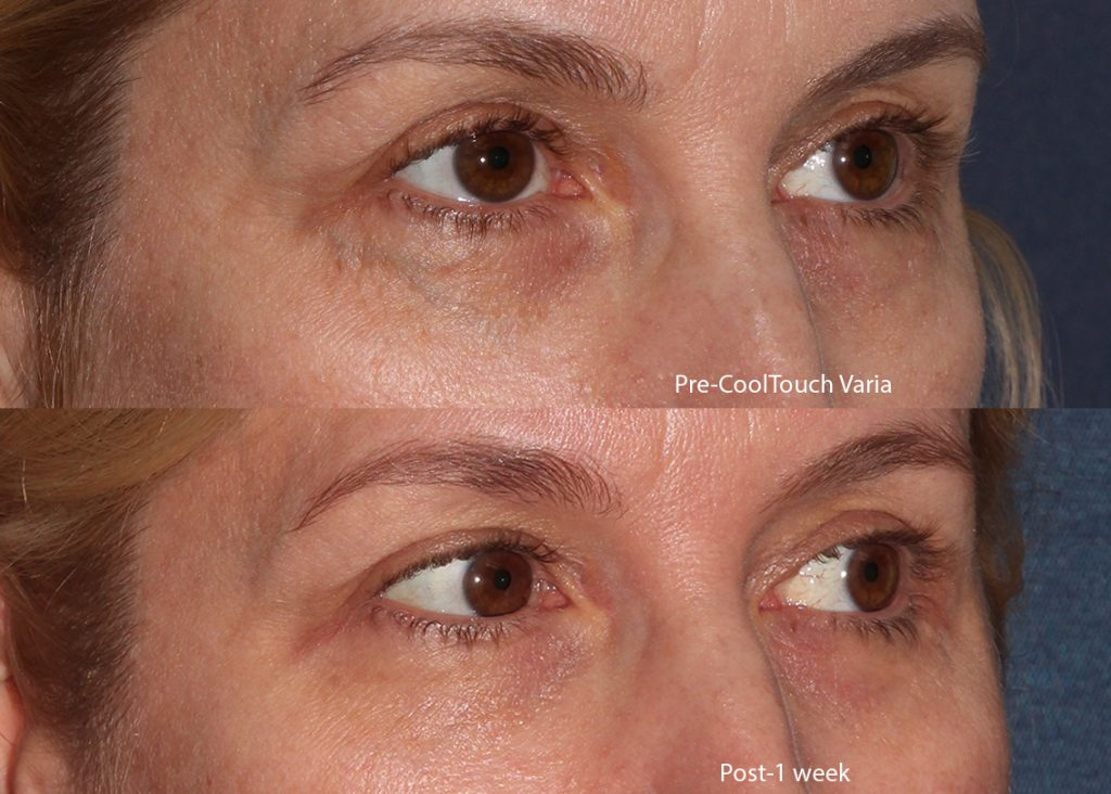 Actual un-retouched patient before and after of Cooltouch Varia laser treatment for under-eye veins by Dr. Groff. Disclaimer: Results may vary from patient to patient. Results are not guaranteed.