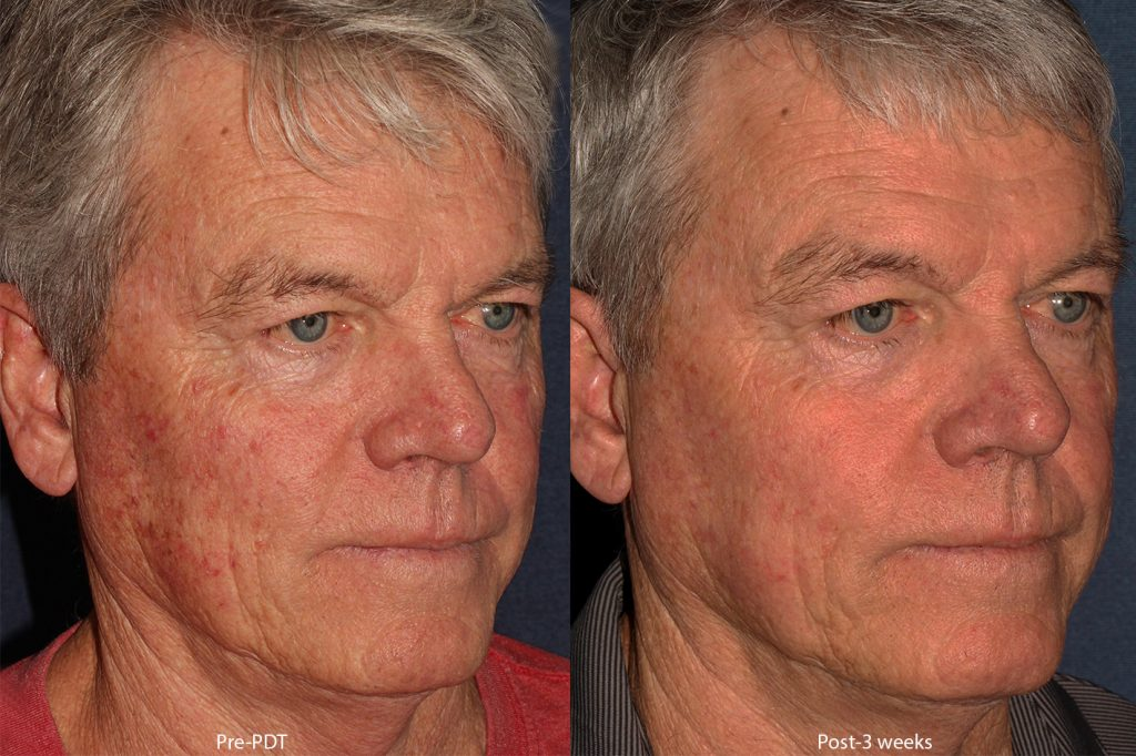 Actual un-retouched patient before and after of photodynamic therapy for sun damage by Dr. Wu. Disclaimer: Results may vary from patient to patient. Results are not guaranteed.