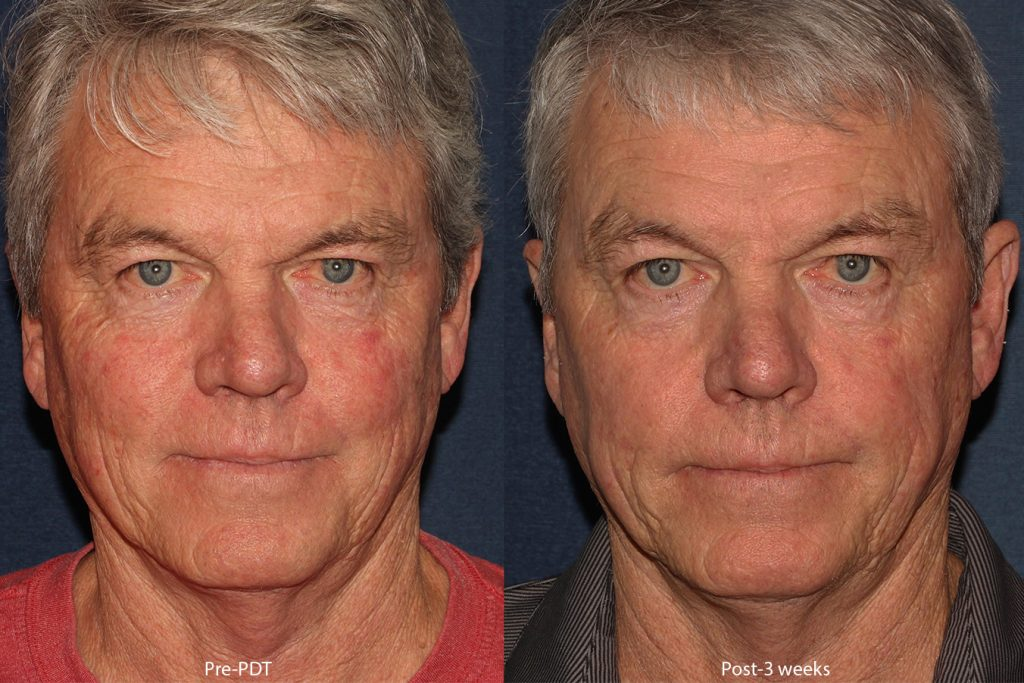Actual un-retouched patient before and after of photodynamic therapy to treat sun damage by Dr. Wu. Disclaimer: Results may vary from patient to patient. Results are not guaranteed.