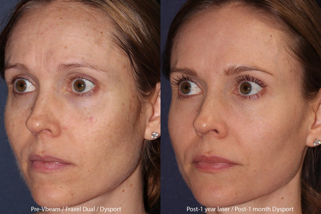 Actual un-retouched patient before and after of combination treatment using Vbeam, Fraxel Dual and Dysport by Dr. Fabi. Disclaimer: Results may vary from patient to patient. Results are not guaranteed.