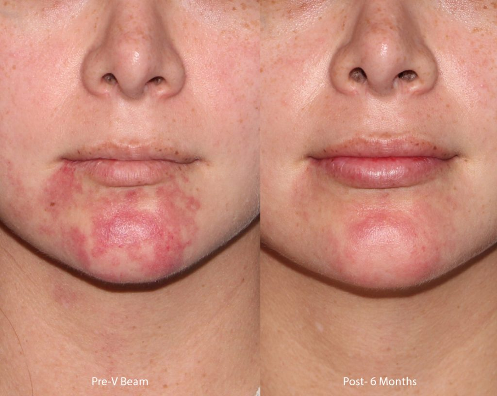 Actual un-retouched patient before and after VBeam laser treatment to the chin by Dr. Groff. Disclaimer: Results may vary from patient to patient. Results are not guaranteed.