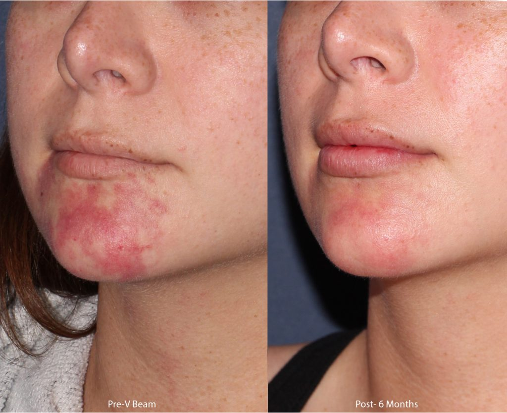 Actual un-retouched patient before and after of VBeam laser treatment with Dr. Groff. Disclaimer: Results may vary from patient to patient. Results are not guaranteed.