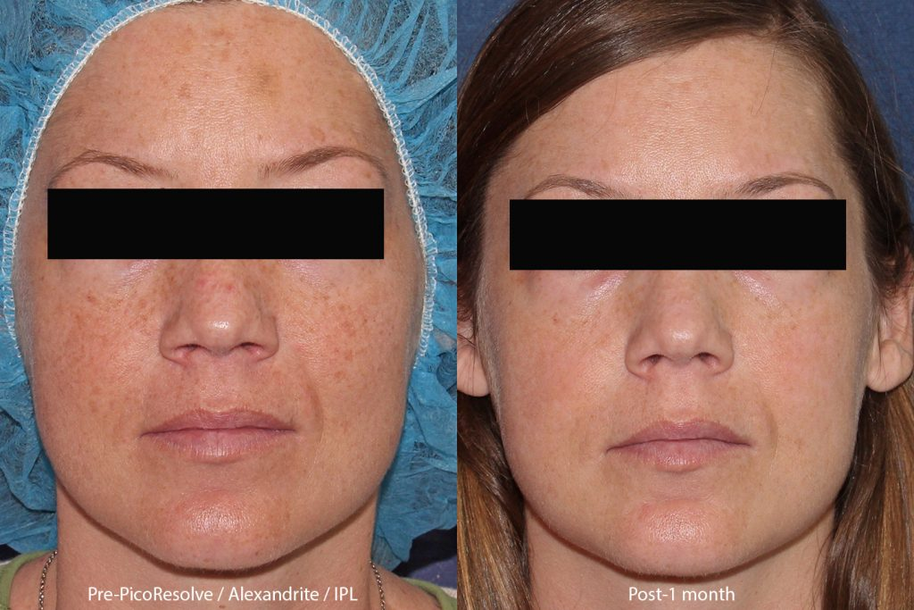 Actual un-retouched patient before and after IPL and PicoWay laser treatment to address sun damage by Dr. Butterwick. Disclaimer: Results may vary from patient to patient. Results are not guaranteed.