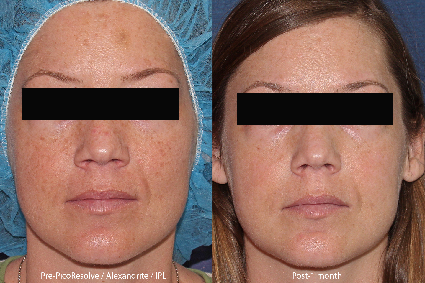 Before and After Photos San Diego, CA | Cosmetic Laser Dermatology