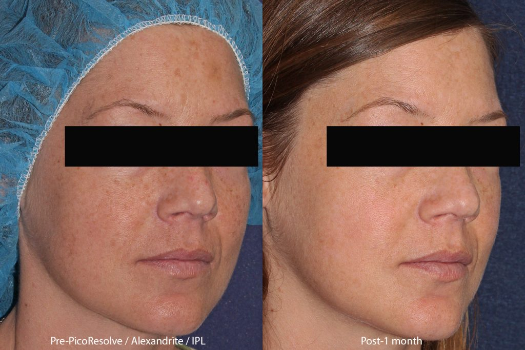 Actual un-retouched patient before and after of combination laser therapy treatment with IPL and the PicoWay by Dr. Butterwick.
