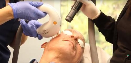 laser skin care procedure