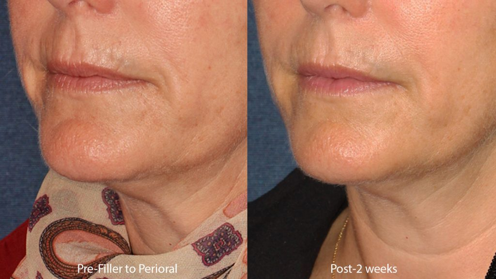 Actual un-retouched patient before and after Restylane filler to treat perioral lines with Dr. Butterwick. Disclaimer: Results may vary from patient to patient. Results are not guaranteed.