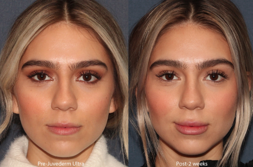 Before and After photo of lip injectables of a San Diego patient.