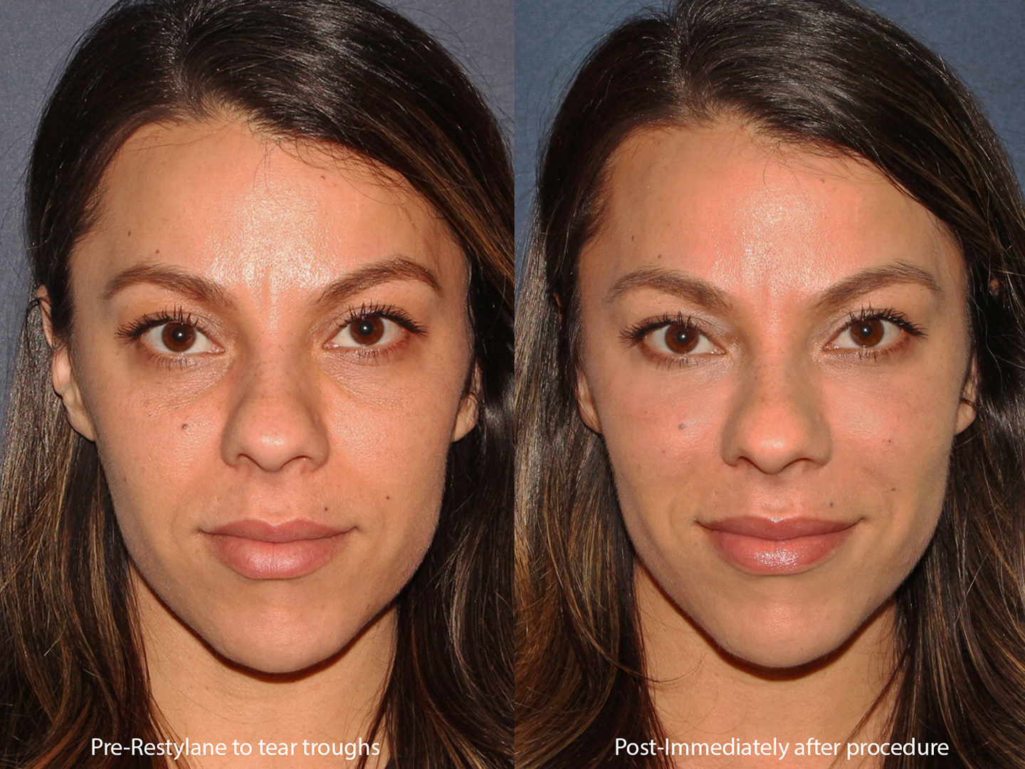 Actual un-retouched patient before and after of Restylane to treat tear troughs by Dr. Butterwick. Disclaimer: Results may vary from patient to patient. Results are not guaranteed.