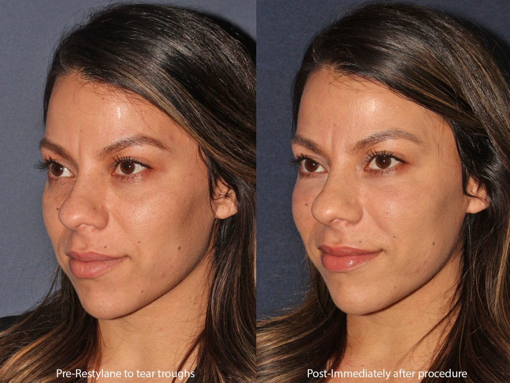 Actual un-retouched patient before and after Restylane injections to tear troughs by Dr. Butterwick. Disclaimer: Results may vary from patient to patient. Results are not guaranteed.