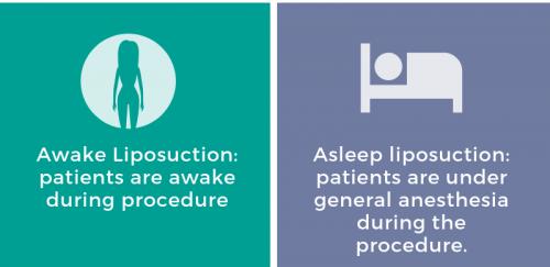 First Inforgraphic of San Diego Cosmetic Laser Dermatology Awake Lipo Blog