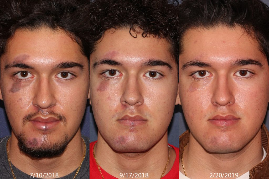 Unretouched photos of patient before and after Cynergy and Picoway laser treatments for pigmentation by Dr. Goldman. Disclaimer: Results may vary from patient to patient. Results are not guaranteed.