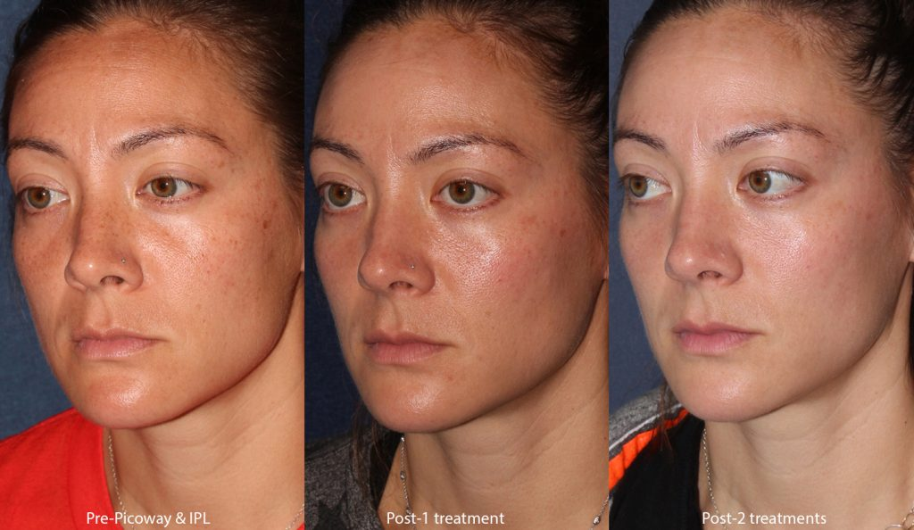 Unretouched photos of patient before and after IPL and Picoway laser treatments to treat sun damage by Dr. Wu. Disclaimer: Results may vary from patient to patient. Results are not guaranteed.