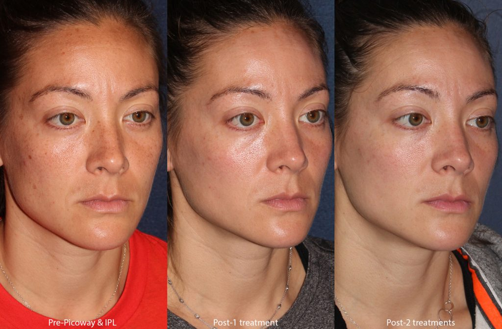 Unretouched photos of patient before and after IPL and Picoway laser treatments for skin rejuvenation by Dr. Wu. Disclaimer: Results may vary from patient to patient. Results are not guaranteed.