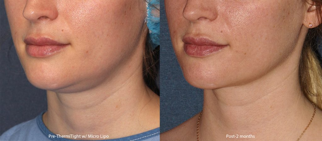 Unretouched photos of patient before and after ThermiTight and micro-lipo to shape the chin and jawline by Dr. Groff. Disclaimer: Results may vary from patient to patient. Results are not guaranteed.