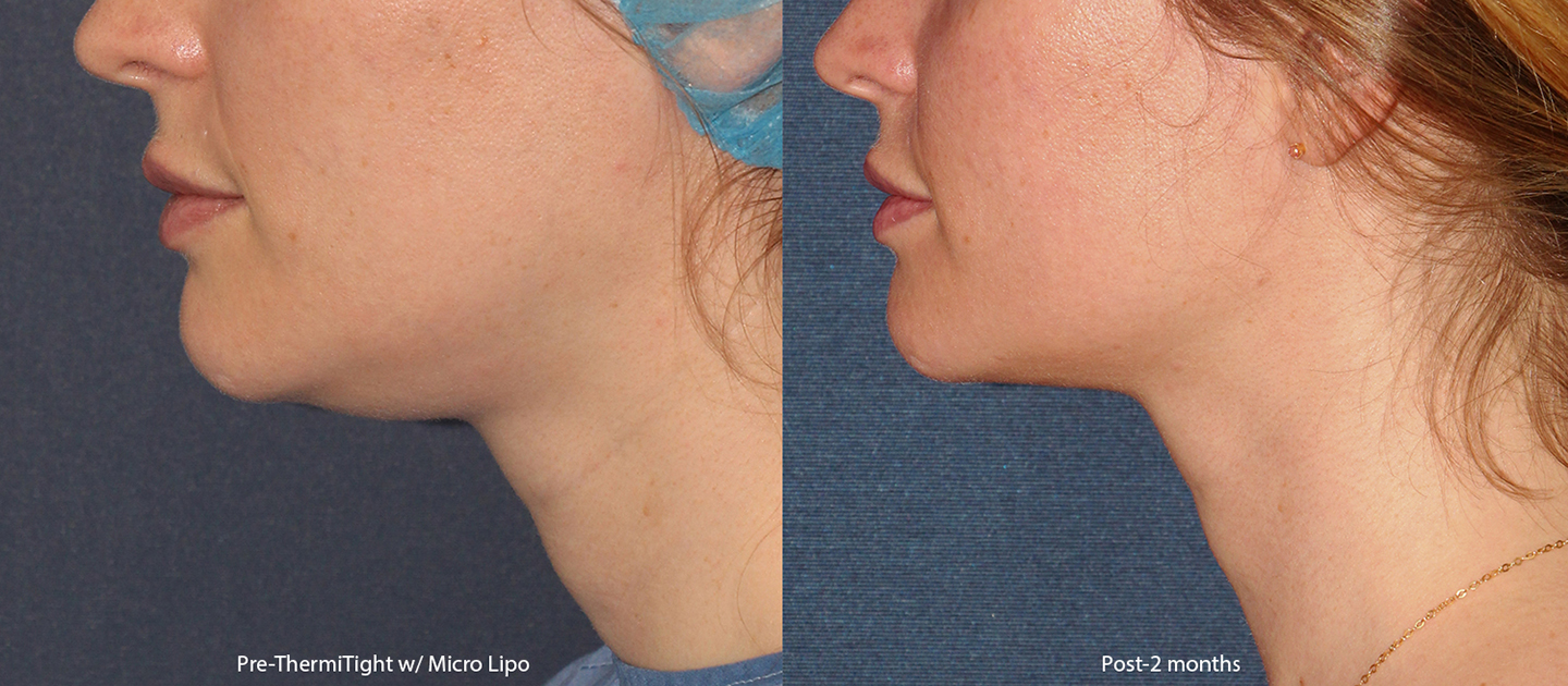 Unretouched photos of patient before and after ThermiTight and micro-lipo to contour the chin by Dr. Groff. Disclaimer: Results may vary from patient to patient. Results are not guaranteed.