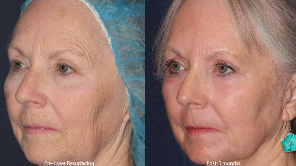 Unretouched photos of patient before and after combination laser treatment for skin rejuvenation by Dr. Groff. Disclaimer: Results may vary from patient to patient. Results are not guaranteed.