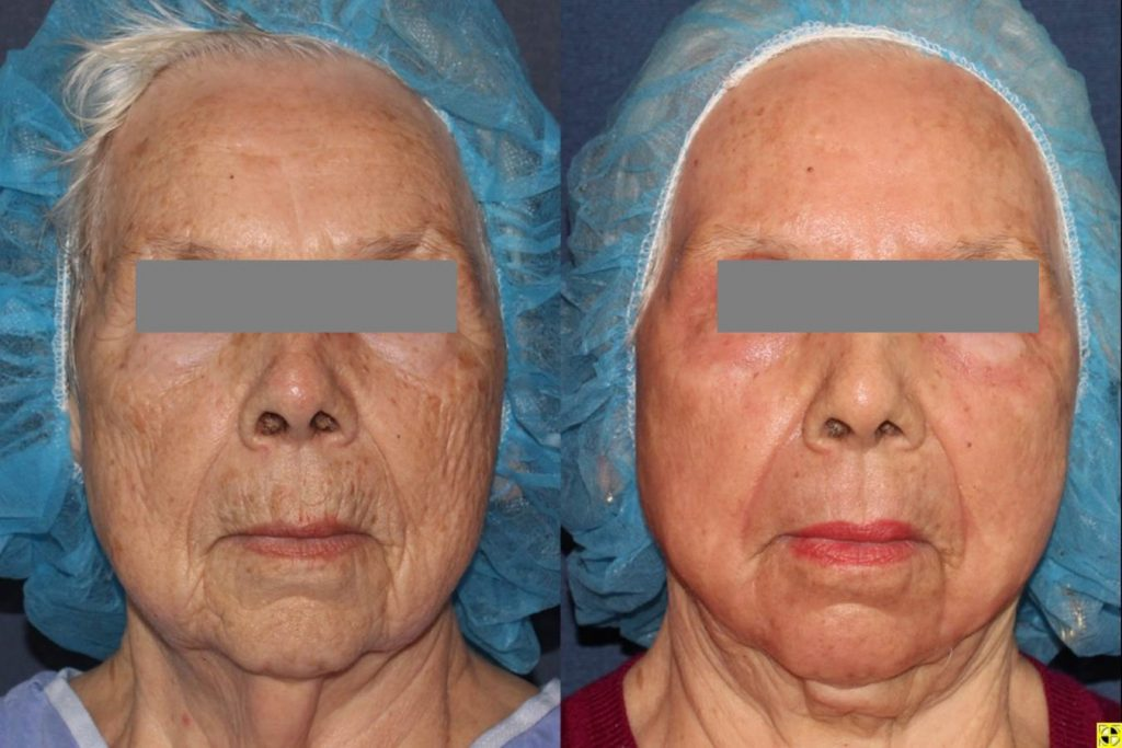 Actual unretouched patient before and after CO2, Erbium Yag laser resurfacing and micro lipo for skin rejuvenation and facial contouring by Dr. Boen. Disclaimer: Results may vary from patient to patient. Results are not guaranteed.