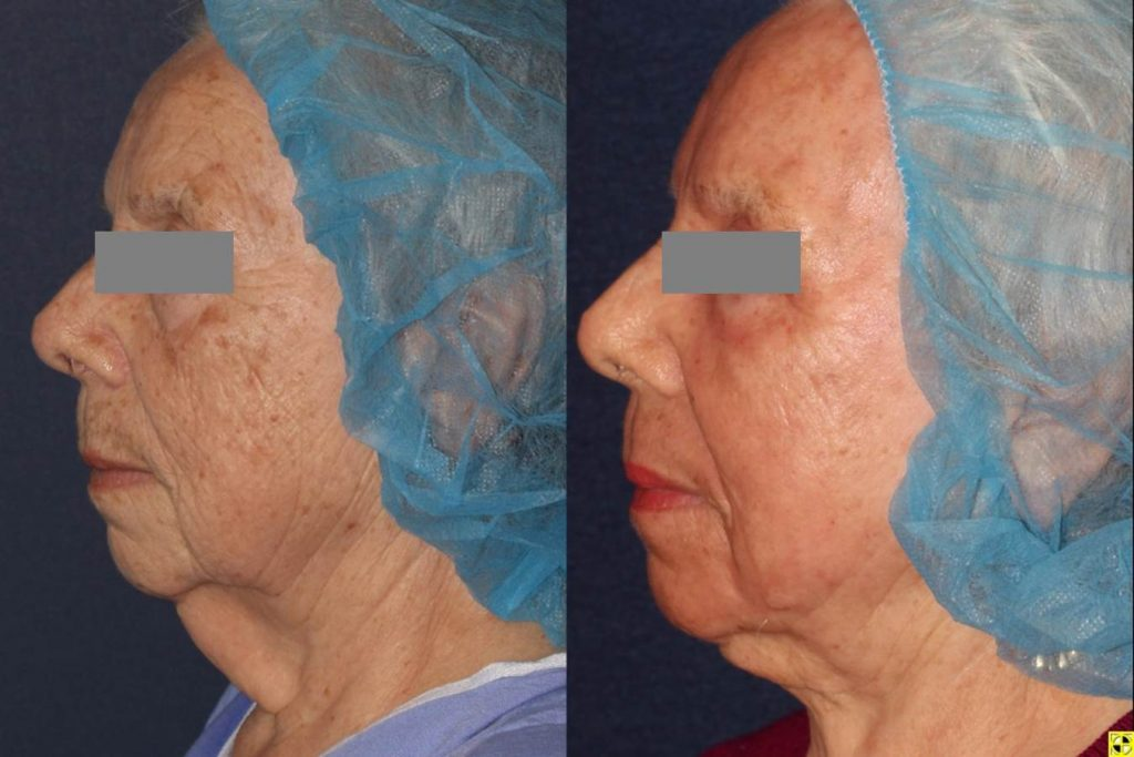 Actual unretouched patient before and after CO2, Erbium Yag laser and micro lipo for facial rejuvenation and sculpting by Dr. Boen. Disclaimer: Results may vary from patient to patient. Results are not guaranteed.