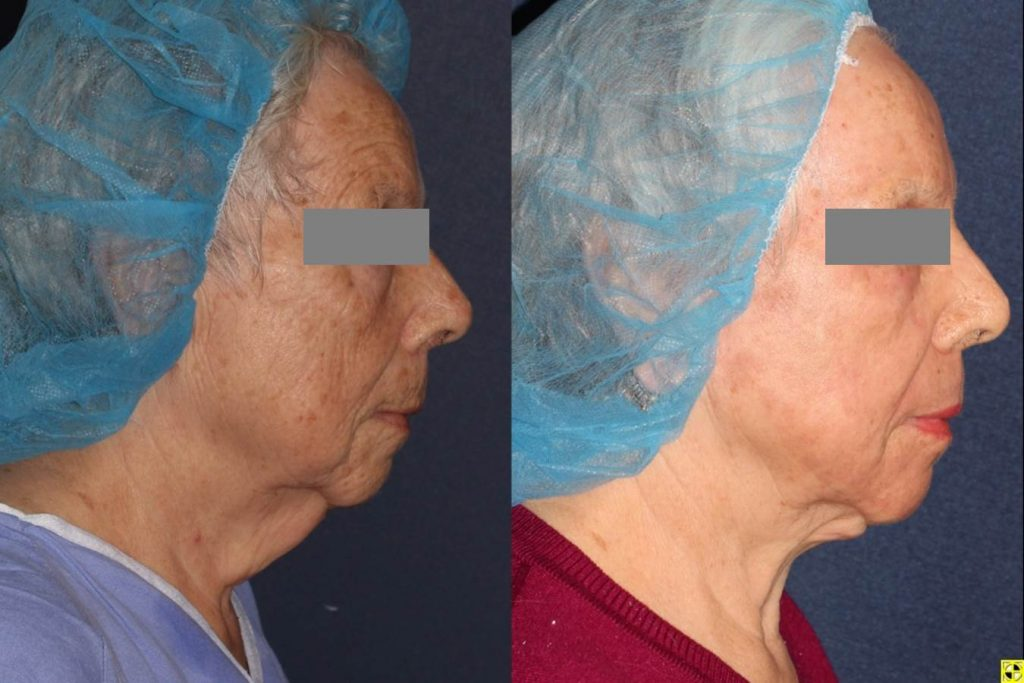 Actual unretouched patient before and after CO2, Erbium Yag and Microlipo for facial rejuvenation and contouring by Dr. Boen. Disclaimer: Results may vary from patient to patient. Results are not guaranteed.