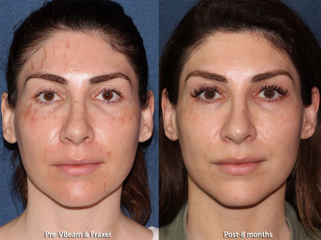 Actual unretouched patient before and after Vbeam and Fraxel for facial scars by Dr. Groff. Disclaimer: Results may vary from patient to patient. Results are not guaranteed.