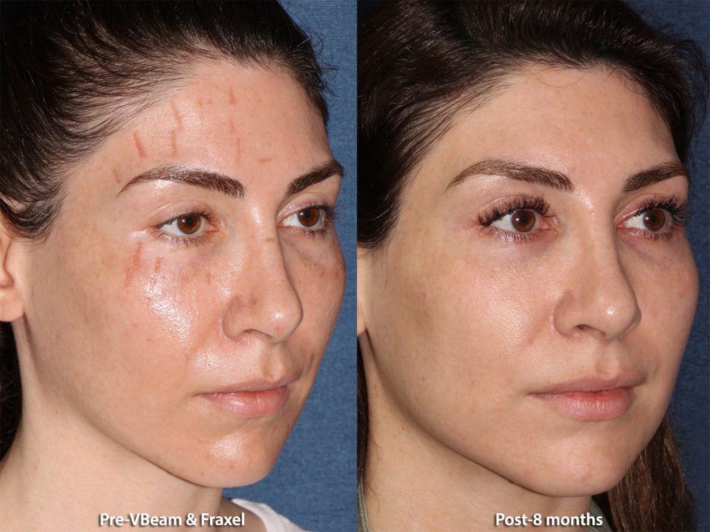 Actual unretouched patient before and after Vbeam and Fraxel to treat facial scars by Dr. Groff. Disclaimer: Results may vary from patient to patient. Results are not guaranteed.