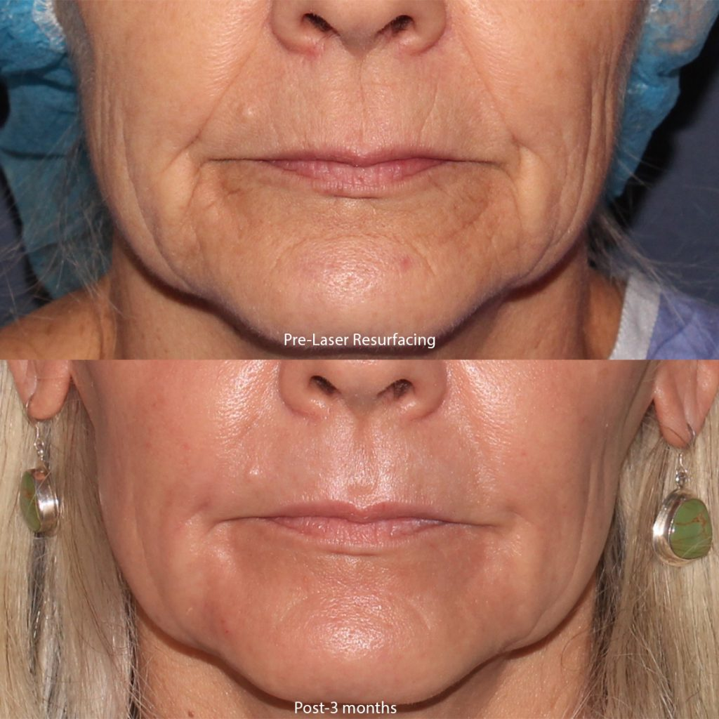 Actual unretouched patient before and 3 months after laser resurfacing for skin rejuvenation by Dr. Groff. Disclaimer: Results may vary from patient to patient. Results are not guaranteed.
