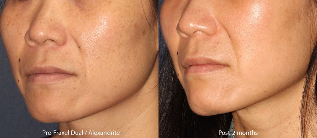 Actual unretouched patient before and after Fraxel Dual and Q-switched Alexandrite laser for skin rejuvenation by Dr. Groff. Disclaimer: Results may vary from patient to patient. Results are not guaranteed.