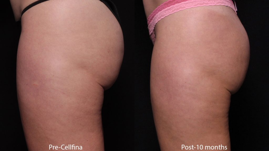 Actual unretouched patient before and after Cellfina to treat cellulite by Dr. Fabi. Disclaimer: Results may vary from patient to patient. Results are not guaranteed.