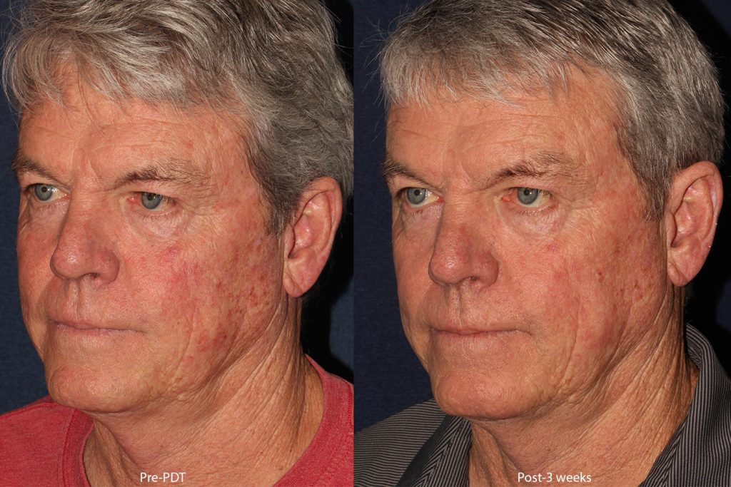 Actual unretouched patient before and after photodynamic therapy for skin rejuvenation by Dr. Wu. Disclaimer: Results may vary from patient to patient. Results are not guaranteed.
