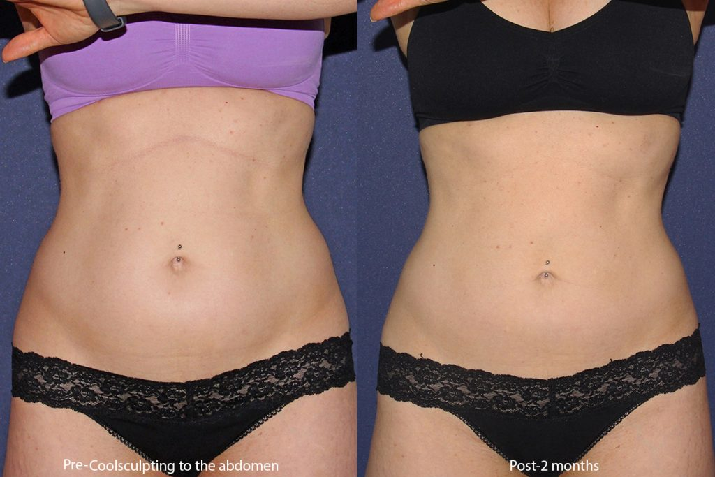Actual un-retouched patient before and after CoolSculpting to reduce the abdomen by Leysin Fletcher, PA-C. Disclaimer: Results may vary from patient to patient. Results are not guaranteed.