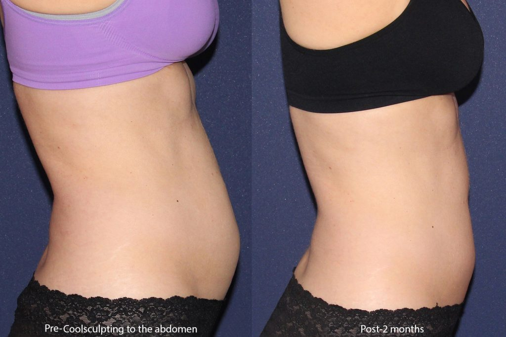 Actual un-retouched patient before and after CoolSculpting to the abdomen by Leysin Fletcher, PA-C. Disclaimer: Results may vary from patient to patient. Results are not guaranteed.