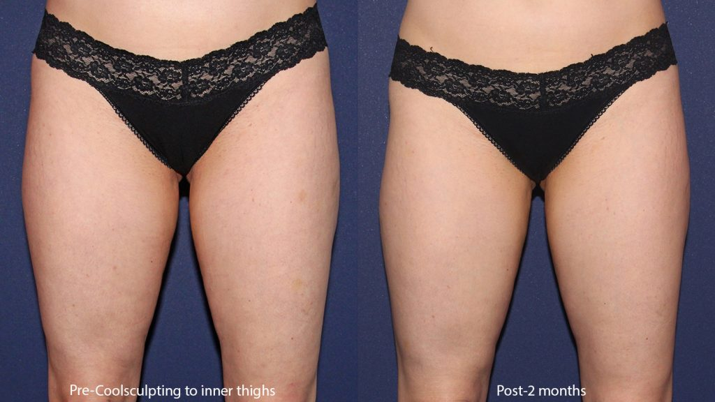 Actual un-retouched patient before and after CoolSculpting to the thighs by Leysin Fletcher, PA-C. Disclaimer: Results may vary from patient to patient. Results are not guaranteed.