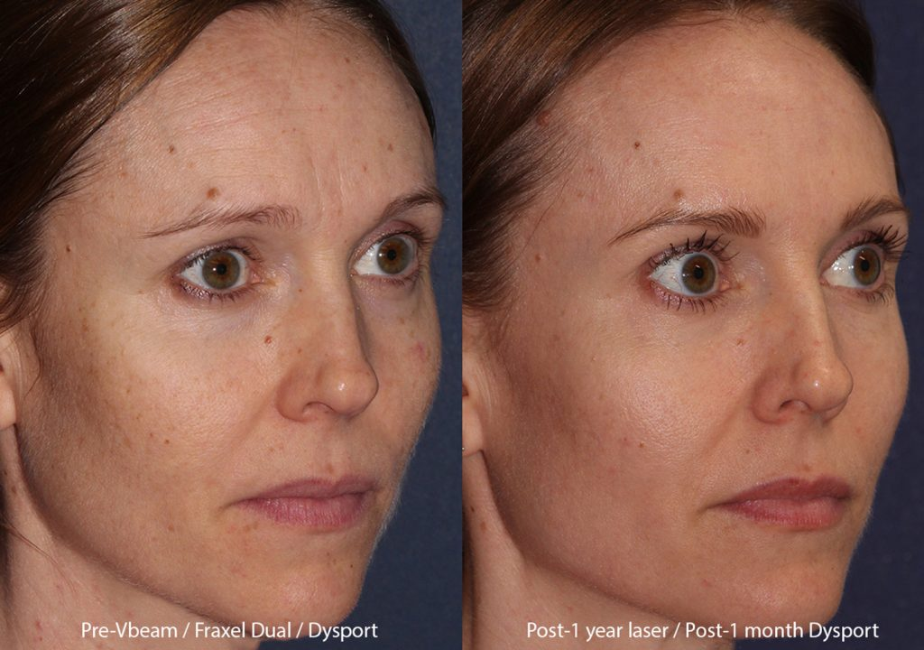 Actual unretouched patient before and after Vbeam, Fraxel Dual, and Dysport by Dr. Fabi. Disclaimer: Results may vary from patient to patient. Results are not guaranteed.