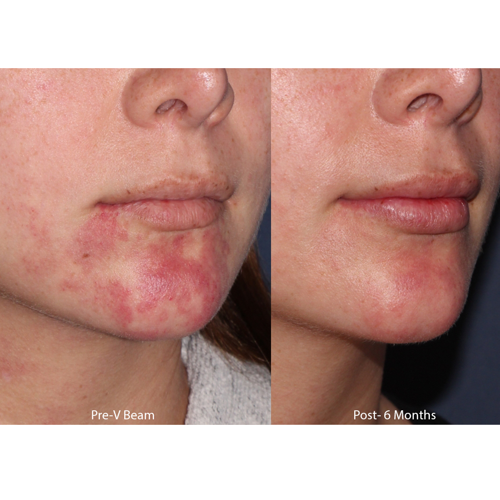 Actual unretouched patient before and after 4 sessions of Vbeam for port wine stain removal by Dr. Groff. Disclaimer: Results may vary from patient to patient. Results are not guaranteed.