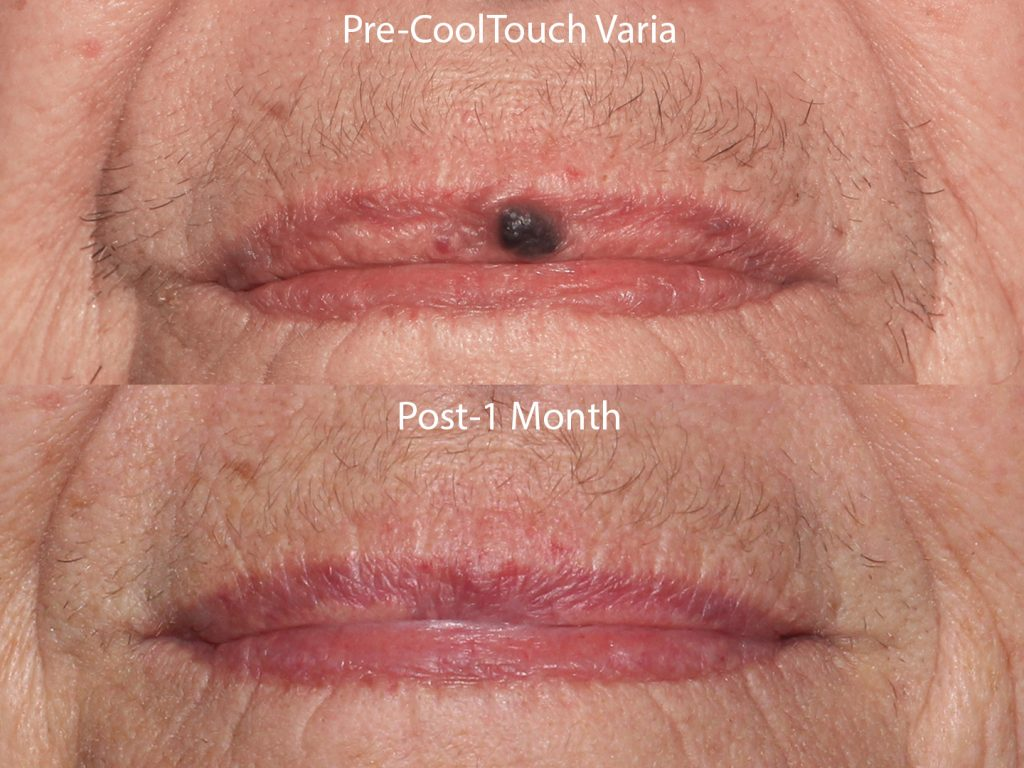 Unretouched photo of patient before and after CoolTouch Varia to remove a mole from the lip by Dr. Wu. Disclaimer: Results may vary from patient to patient. Results are not guaranteed.