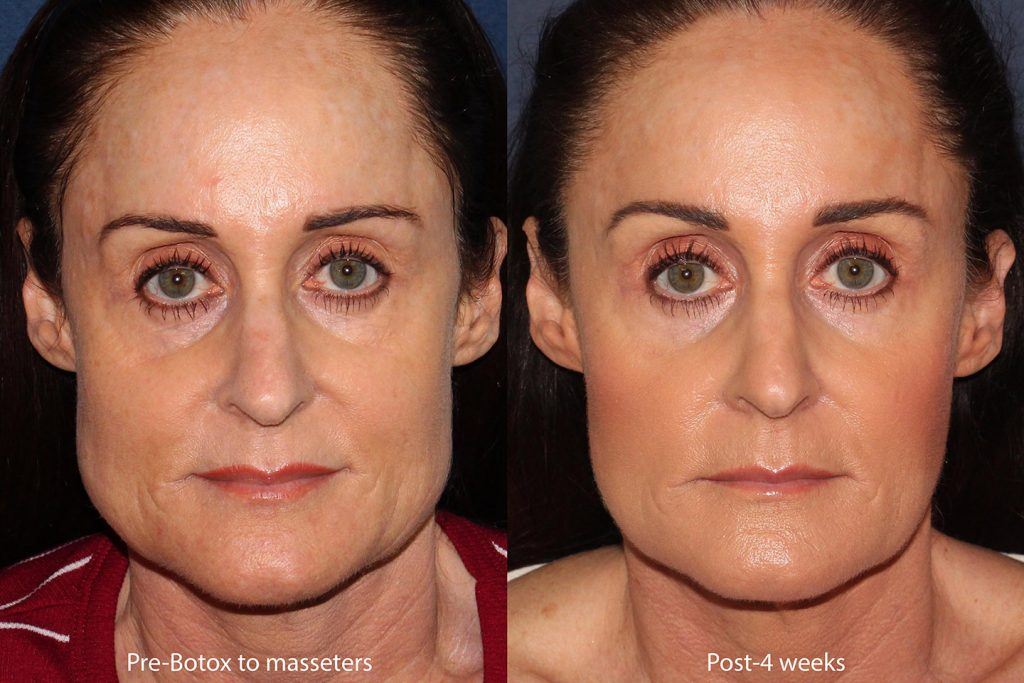 Unretouched photos of patient before and after Botox injections to the masseter muscle by Dr. Groff. Disclaimer: Results may vary from patient to patient. Results are not guaranteed.