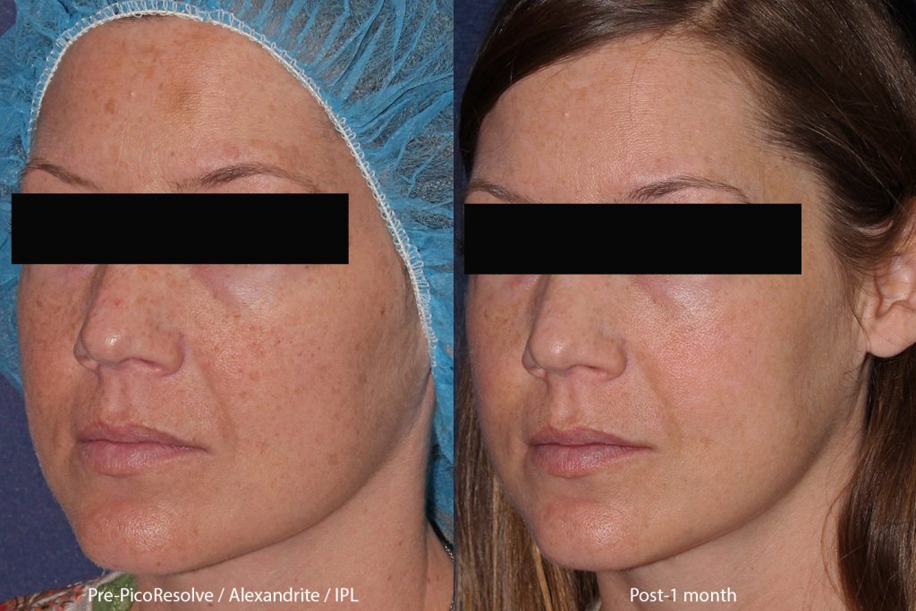 Unretouched photos of patient before and after IPL and Picoway laser treatment to address sun damage to the face by Dr. Butterwick. Disclaimer: Results may vary from patient to patient. Results are not guaranteed.