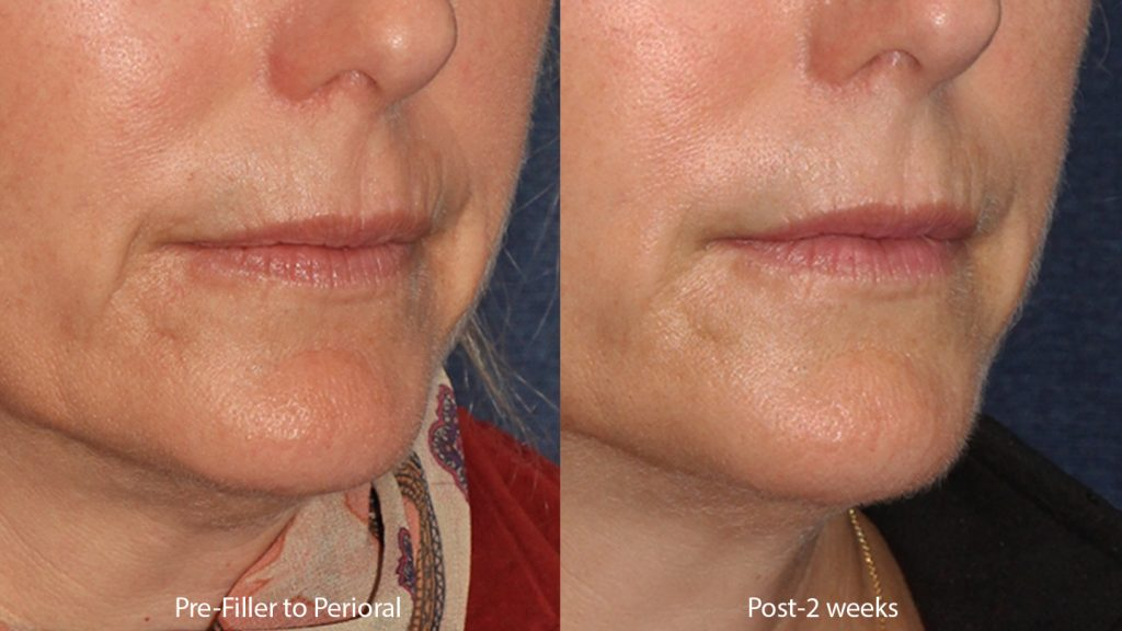 Unretouched photos of patient before and after Restylane injections to treat lines around the mouth by Dr. Butterwick. Disclaimer: Results may vary from patient to patient. Results are not guaranteed.