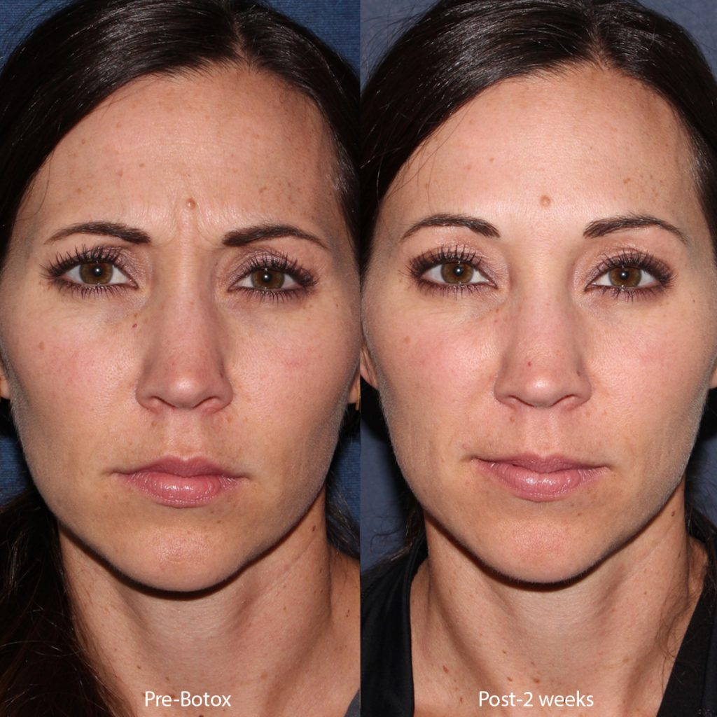 Unretouched photos of patient before and after Botox injections to treat frown lines by Dr. Groff. Disclaimer: Results may vary from patient to patient. Results are not guaranteed.