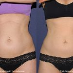 liposuction before and after in san diego, ca